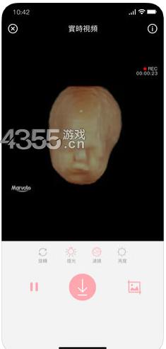体内相机iOS版